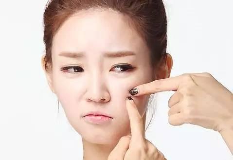 [新聞] 專家揭秘如何清除臉上痘痘日常護理清潔肌膚必不可少